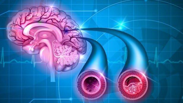 درمان زوال عقل با داروی فشار خون